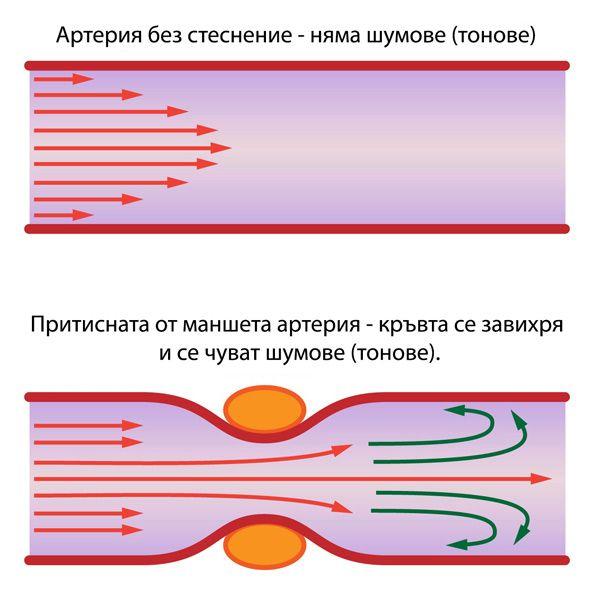 Измерване на кръвно налягане - тонове