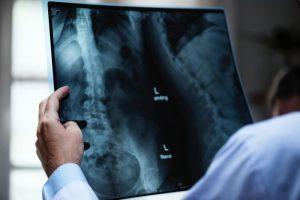Рентгенова снимка