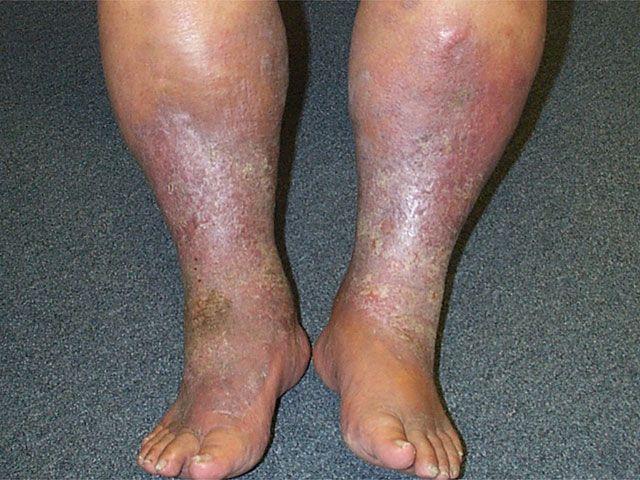 """Липодерматосклероза - хронично възпаление на кожата и подкожната мастна тъкан. Кожата е плътна и твърда. Процесът е най-изразен над глезените, откъдето идва и видът на """"обърната бутилка""""."""