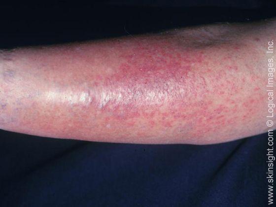Стазен дерматит (екзема) при хроничен венозен застой.