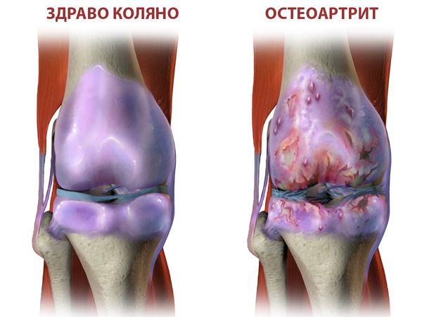 Ползи от куркума при остеоартрит.