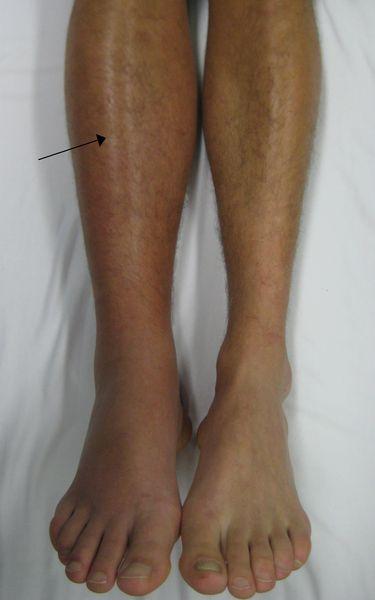Дълбок тромбофлебит (флеботромбоза, ДВТ) на крака.