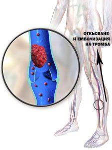 Белодробна емболия - усложнение на дълбокия тромбофлебит.
