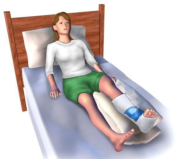 Елевация при подуване на краката.
