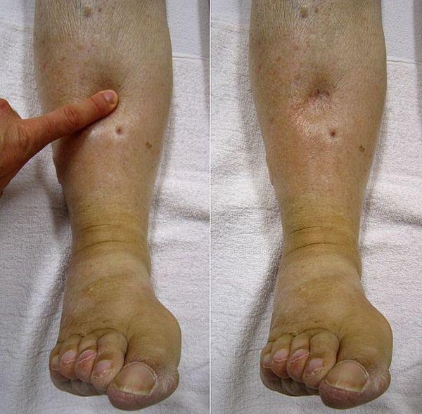 Подуване на краката при сърдечна недостатъчност.