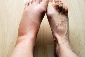 Подуване на глезена и ходилтото на левия крак
