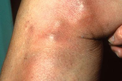 Повърхностен тромбофлебит
