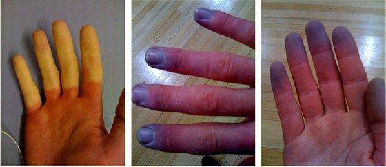 Бледост и посиняване на пръсти при пристъп на синдром и болест на Рейно.