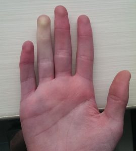 Бледи и зачервени пръсти при болест и синдром на Рейно.