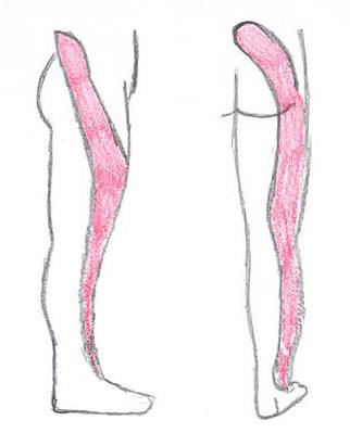 Болка в крака при лумбална радикулопатия.