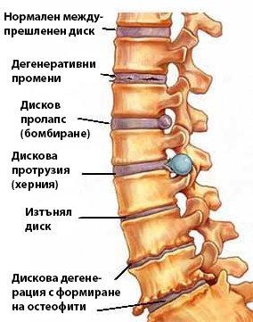Дискова херния, пролапс - болка и изтръпване на краката.
