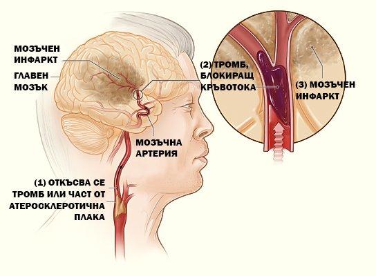 Запушване на кръвоносен съд води до исхемичен инсулт или микроинсулт