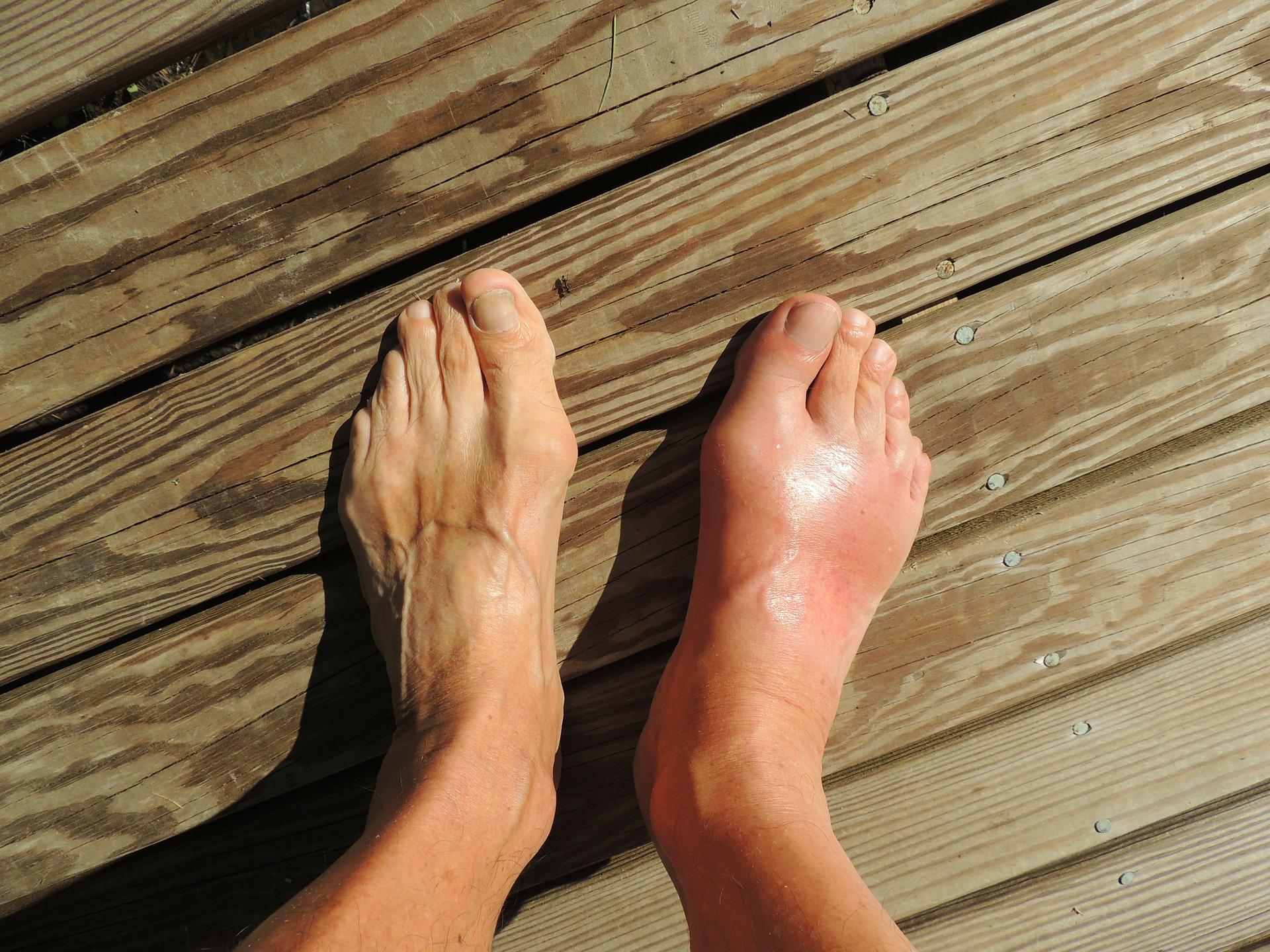 Болка, оток, зачервяване на ходилото (крака).