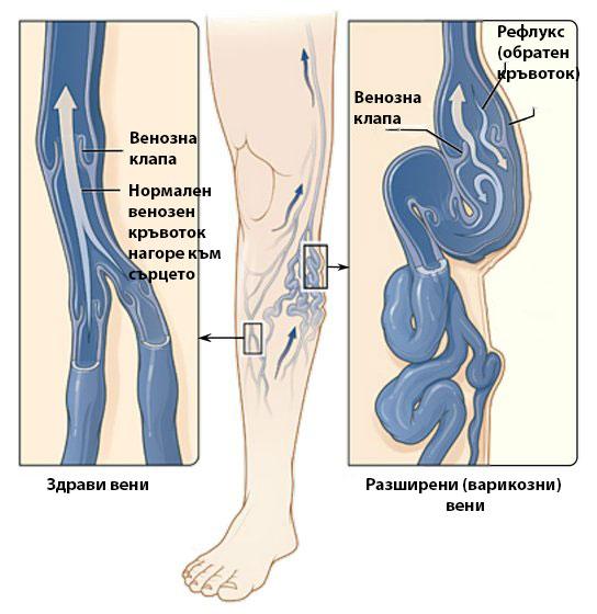 Рефлукс (връщане) на кръв в разширени вени.