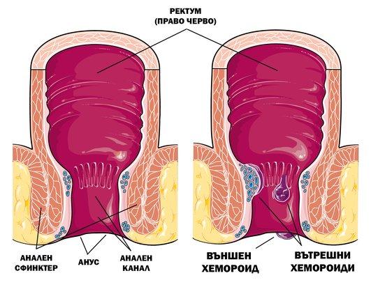 Външни и вътрешни хемороиди.