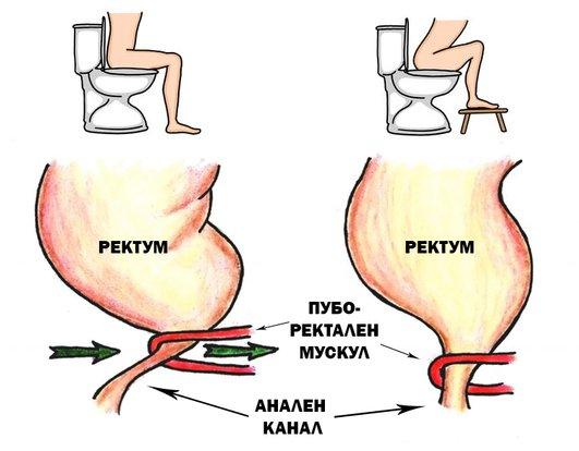 Лечение на вътрешни и външни хемороиди чрез правилна позиция при изхождане.