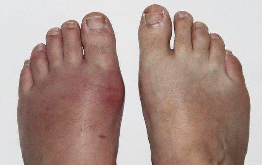 Симптоми на подагра - болезнено зачервяване и подуване на първи пръст на ходилото