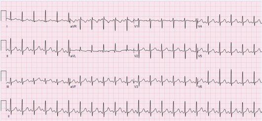 Тахикардия (пулс над 100) на електрокардиограма (ЕКГ)